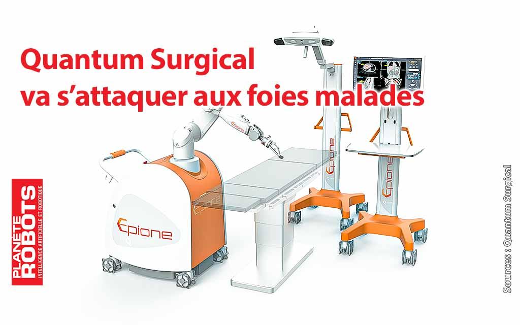 Quantum Surgical, des robots capables de soigner le foie