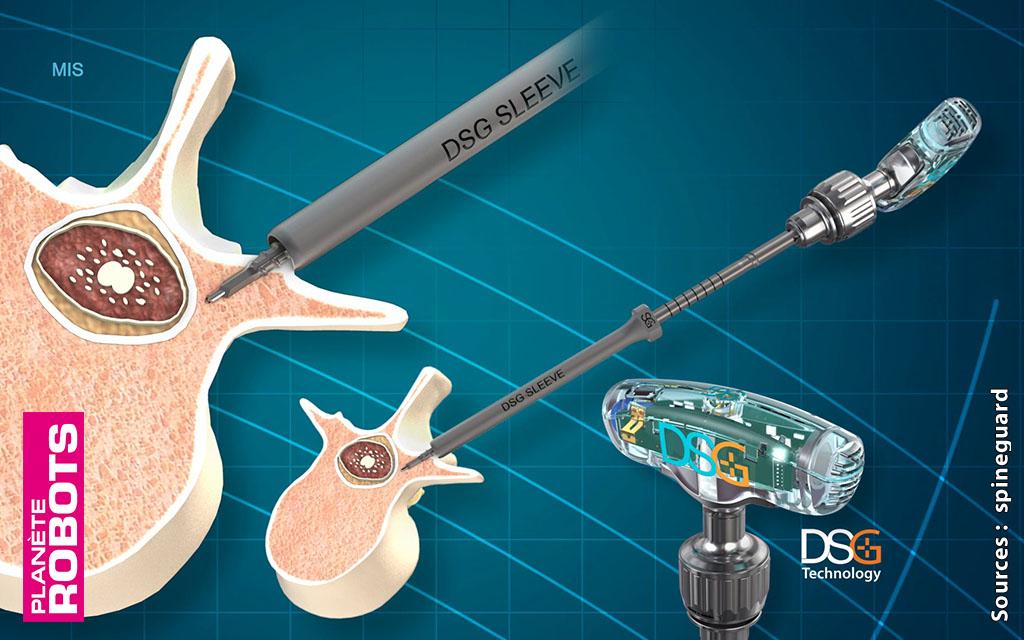 La technologie DSG pour une chirurgie toujours plus précise
